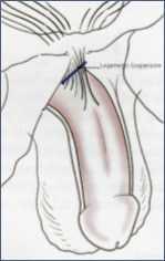 Allungamento penieno con falloplastica laser: fase 2