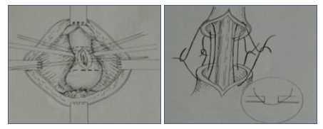 Stenosi uretrale intervento: Anastomosi Termino-terminale
