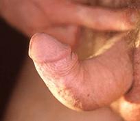 Placca ventrale: curvatura verso l'alto