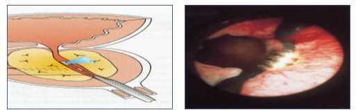 Vaporizzazione prostata Laser - Prostatectomia laser