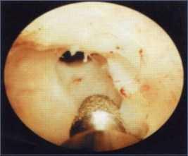 Sclerosi collo vescicale secondaria