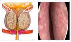 ipertrofia prostatica benigna sintomi