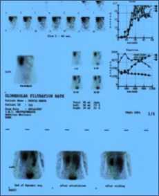 Stenosi del giunto pielo ureterale: diagnosi