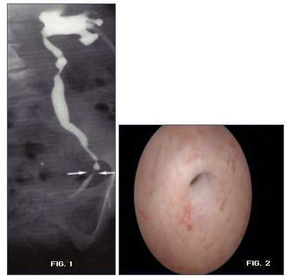Stenosi uretrali diagnosi
