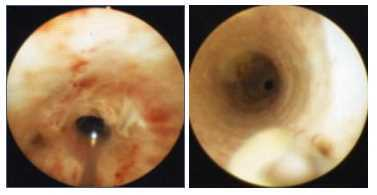 Stenosi uretrale cura: Tecnica endurologica