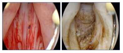 Trattamento sclerosi collo vescicale