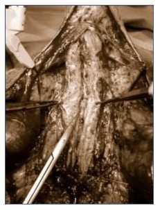 Stenosi uretrale intervento: Uretroplastica