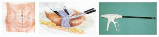 Varicocele laparoscopia