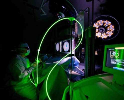 Laser verde prostata: intervento con il green laser