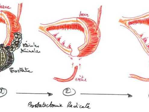 Prostatectomia radicale laparoscopica