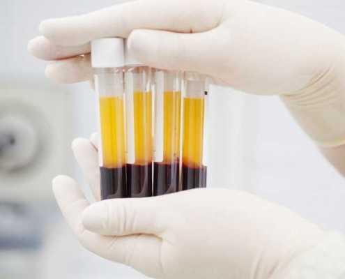 PRP per disfunzione erettile e malattia di La Pyronie